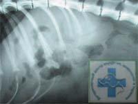 Рентгенограмма. Определяется уменьшение тени контуров печени