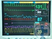 На мониторе можно увидеть портальное и системное артериальное давление