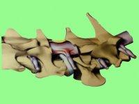 Схема грыжи шейного отдела у собаки