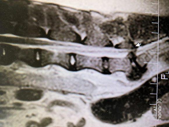 пояснично-крестцовый стеноз мрт