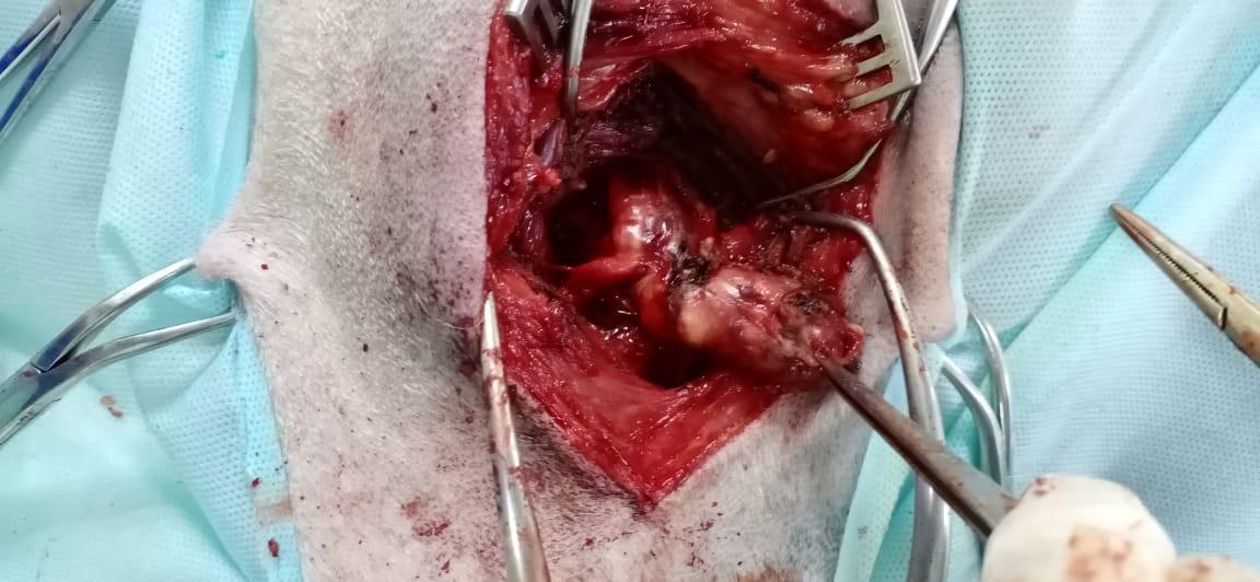 опухоль периферических нервов