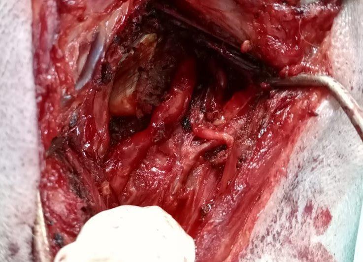 опухоль периферических нервов: после удаления